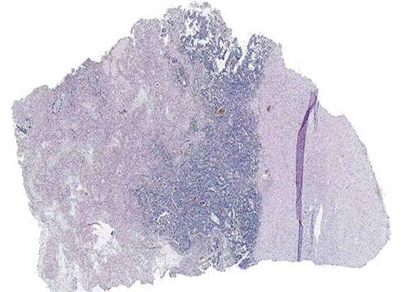 mt5000 specimen